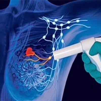 Avances en las nuevas tecnologías para el diagnóstico y radiotratamiento del cáncer